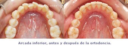 Arcada inferior antes y después de ortodoncia - Injerto de encía en un tratamiento de ortodoncia