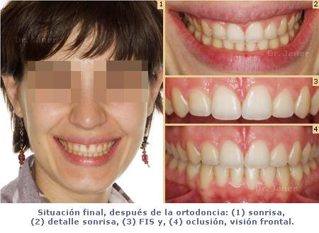 Situación final de caso resuelto de superdiastema con ortodoncia y periodontología_JanerOrtodoncia