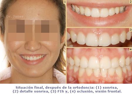 ortodoncia_caso resuelto con apiñamiento dental severo_foto después de la ortodoncia_JanerOrtodoncia