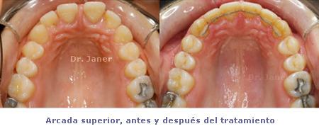 Arcada superior antes y después de la ortodoncia en un caso con super diastema resuelto con ortodoncia y periodontología_JanerOrtodoncia