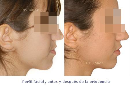 ortodoncia_caso resuelto con apiñamiento dental severo_foto perfil facial antes y después de la ortodoncia_JanerOrtodoncia