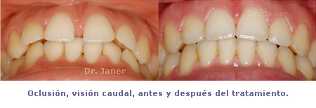 Oclusión visión caudal antes y después ortodoncia de un caso de super diastema resuelto con ortodoncia y periodontología_JanerOrtodoncia