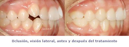 Oclusión visión lateral antes y después de la ortodoncia en un caso resuelto con apiñamiento dental severo_Janerortodoncia