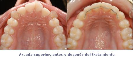 Visión arcada superior antes y después de la ortodoncia de un caso resuelto con apiñamiento dental severo_JanerOrtodoncia