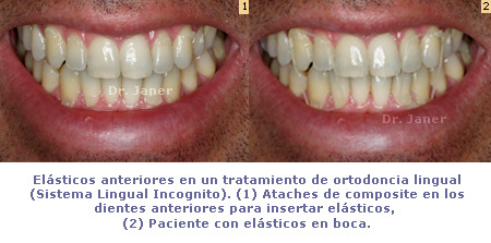 foto 1: ataches de composite en dientes anteriores para insertar elásticos_Foto 2: paciente con elásticos en boca