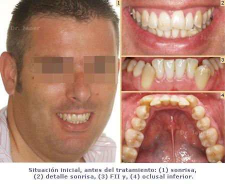 situacion inicial del caso con apiñamiento de la arcada inferior y periodontitis resuelto con ortodoncia lingual sonrisa_JanerOrtodoncia
