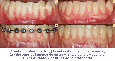 Injerto de encia en un tratamiento de ortodoncia