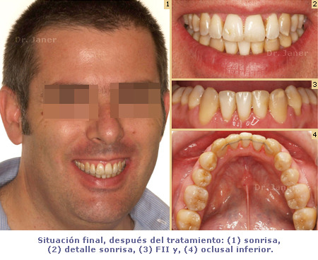 situacion final del caso con apiñamiento de la arcada inferior y periodontitis resuelto con ortodoncia lingual sonrisa_JanerOrtodoncia