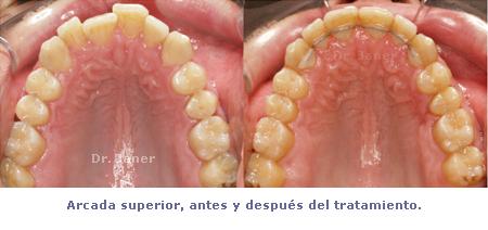 arcada superior del caso con apiñamiento de la arcada inferior y periodontitis resuelto con ortodoncia lingual sonrisa_JanerOrtodoncia