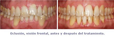olcusión visión frontal del caso con apiñamiento de la arcada inferior y periodontitis resuelto con ortodoncia lingual sonrisa_JanerOrtodoncia