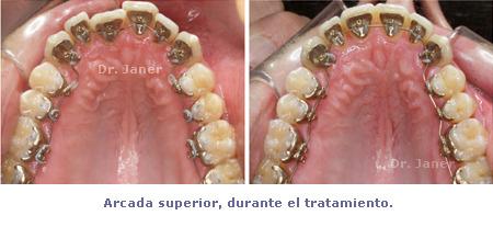 arcada superior durante el tratamiento del caso con apiñamiento de la arcada inferior y periodontitis resuelto con ortodoncia lingual sonrisa_JanerOrtodoncia
