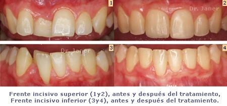 Frente incisivo inferior antes y después de la ortodoncia en un caso donde el grosor de la encía varía con la inclinación de los dientes_JanerOrtodoncia