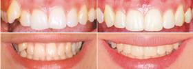 Casos resueltos de ortodoncia en Barcelona