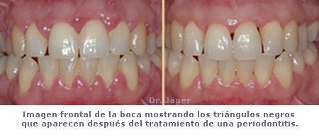 Triangulos negros después de un tratamiento de periodontitis