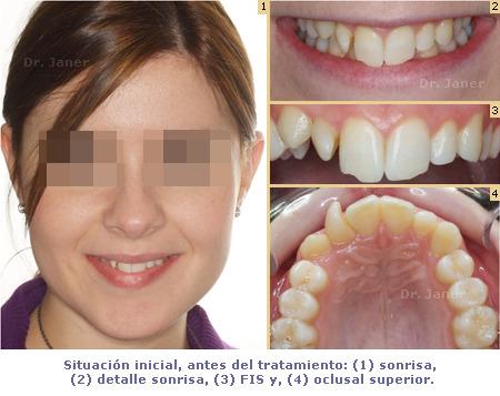 situación inicial del caso de apiñamiento de la arcada superior y sobremordida dentales resuelto con ortodoncia lingual_JanerOrtodoncia