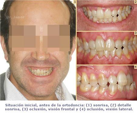 caso de mordida cruzada anterior resuelto con ortodoncia_ visión situación inicial_JanerOrtodoncia
