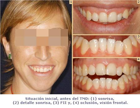 Situación inicial antes del TMD en caso de retrognatismo mandibular, mordida abierta y mandibula grande resuelto con ortodoncia multidisciplinar_JanerOrtodoncia