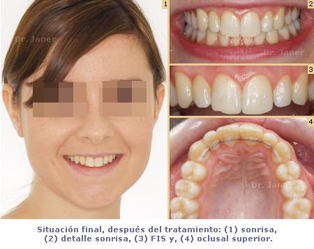 situacion final del caso de apiñamiento de la arcada superior y sobremordida dentales resuelto con ortodoncia lingual_JanerOrtodoncia