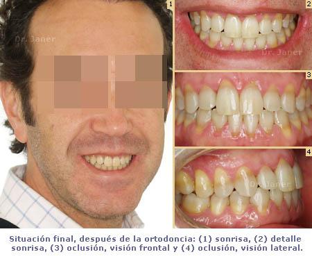 caso de mordida cruzada anterior resuelto con ortodoncia_ visión situación final_JanerOrtodoncia