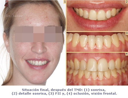 Situación final después del TMD en caso de retrognatismo mandibular, mordida abierta y mandibula grande resuelto con ortodoncia multidisciplinar_JanerOrtodoncia