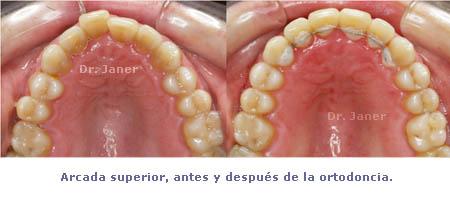 caso de mordida cruzada anterior resuelto con ortodoncia_ arcada superior antes y después de la ortodoncia_JanerOrtodoncia