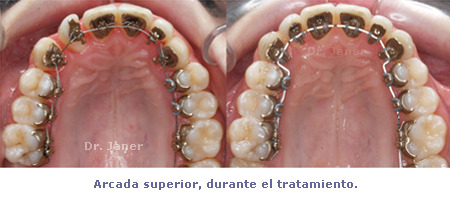 arcada superior durante tratamiento del caso de apiñamiento de la arcada superior y sobremordida dentales resuelto con ortodoncia lingual_JanerOrtodoncia