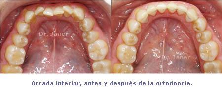 caso de mordida cruzada anterior resuelto con ortodoncia_ arcada inferior antes y después de la ortodoncia_JanerOrtodoncia