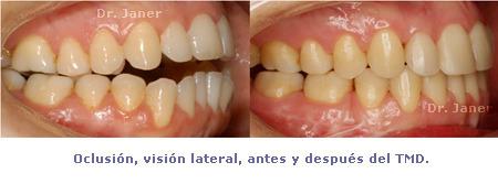 oclusión antes y después del TMD  en caso de retrognatismo mandibular, mordida abierta y mandibula grande resuelto con ortodoncia multidisciplinar_JanerOrtodoncia