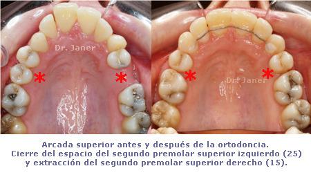 Arcada superior antes y después ortodoncia_cierre del espacio premolar superior izquierdo y extracción del segundo premolar superior derecho_Janer Ortodoncia