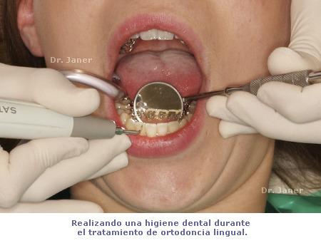 Proceso de una higiene dental durante el tratamiento de ortodoncia lingual_JanerOrtodoncia