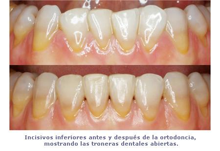 Troneras de los incisivos inferiores antes y después de la ortodoncia