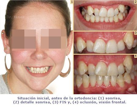 foto de la situacion inicial del caso de apiñamiento dental marcado resuelto con ortodoncia_JanerOrtodoncia