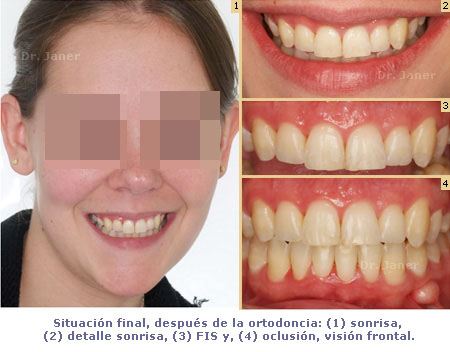 foto de la situacion final del caso de apiñamiento dental marcado resuelto con ortodoncia_JanerOrtodoncia
