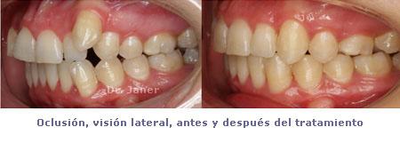 foto de la oclusión lateral del caso de apiñamiento dental marcado resuelto con ortodoncia_JanerOrtodoncia