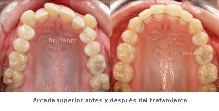 foto de la arcada superior antes y después del caso de apiñamiento dental marcado resuelto con ortodoncia_JanerOrtodoncia