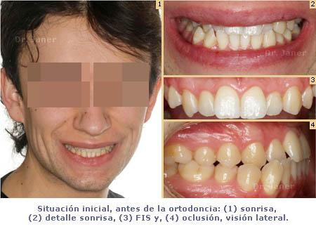 caso de mordida cruzada anterior y apiñamiento dental antes de la ortodoncia_JanerOrtodoncia