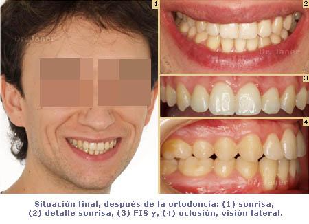 caso de mordida cruzada anterior y apiñamiento dental situación después de la ortodoncia_JanerOrtodoncia