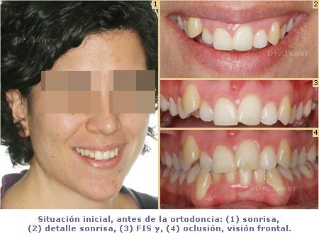 Situación inicial antes de la ortodoncia del caso de apiñamiento dental y desgaste de un incisivo inferior resuelto con ortodoncia lingual_JanerOrtodoncia