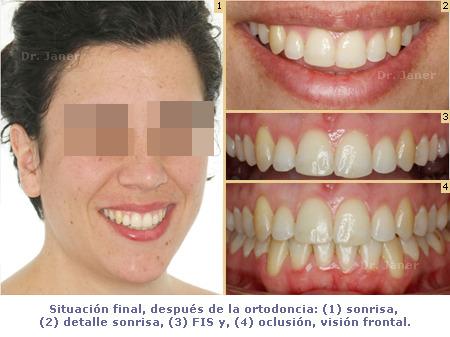 Situación final después de la ortodoncia del caso de apiñamiento dental y desgaste de  un incisivo inferior resuelto con ortodoncia lingual_JanerOrtodoncia