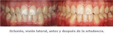 caso de mordida cruzada anterior y apiñamiento dental _ foto oclusión frontal antes y después de la ortodoncia_JanerOrtodoncia