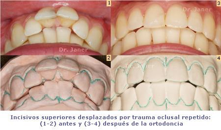 Incisivos superiores desplazados por trauma oclusal repetido antes y después de la ortodoncia