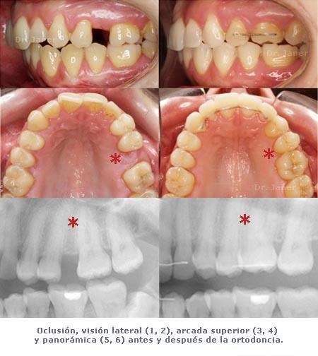 Oclusión lateral, arcada superior y rx's antes y después de la ortodoncia_JanerOrtodoncia
