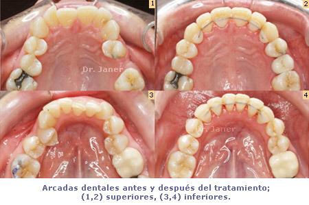 Arcada superior e inferior antes y después de la ortodoncia_forma de las arcadas dentales_JanerOrtodoncia