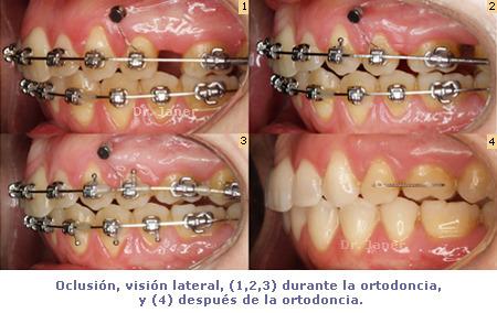 microtornillo en ortodoncia para anclaje_JanerOrtodoncia
