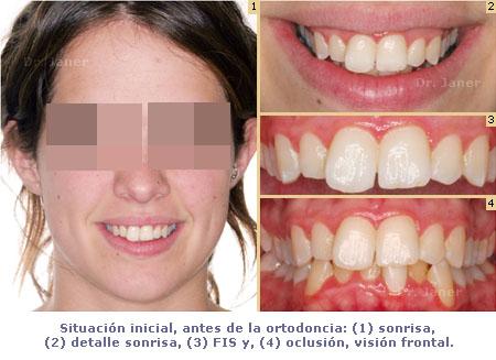 Situación inicial de caso de apiñamiento dental con stripping en caso de ortodoncia lingual