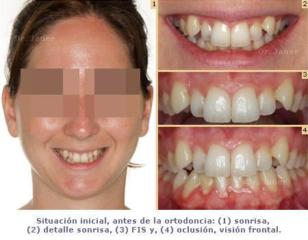 Situación inicial de caso de apiñamiento con ortodoncia lingual_JanerOrtodoncia