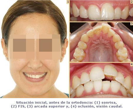 Situación inicial antes de la ortodoncia en un caso de apiñamiento dental resuelto con Invisalign