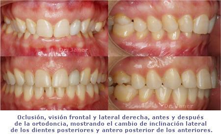 oclusiones antes y después  de la ortodoncia en caso de aumentar torque dental