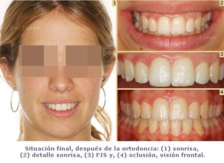 Situación final de caso de apiñamiento dental con stripping en caso de ortodoncia lingual