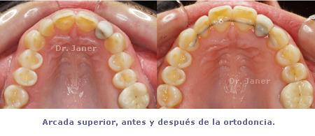 arcada superior antes y después  de la ortodoncia en caso de aumentar torque dental
